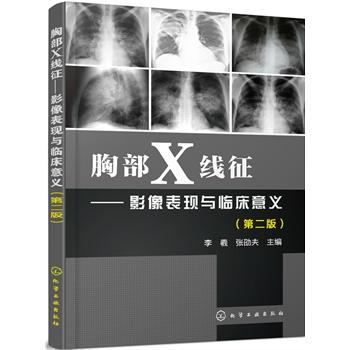 胸部X线征——影像表现与临床意义(第二版)