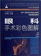 眼科手术彩色图解(附光盘)(精)/中华手术彩图全解